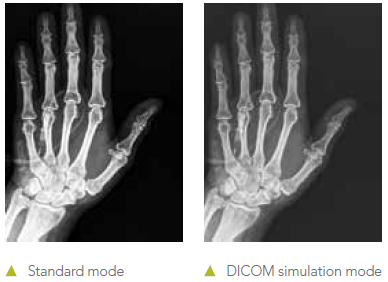 Digital Imaging and Communication in Medical (DICOM) simulation